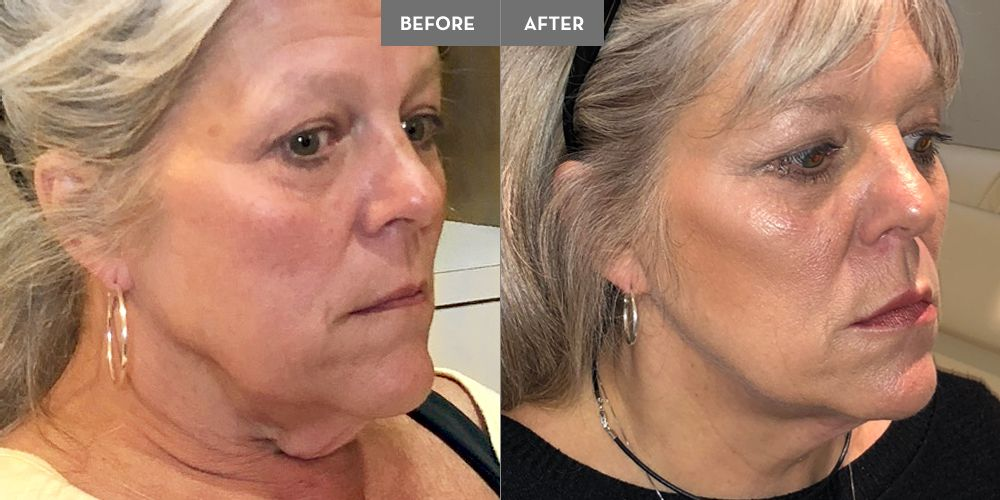 1 kit of Kybella for the chin/neck, 1 Voluma in each cheek, 1 Juvederm in the lips, and Botox for forehead, frown lines, and eyes