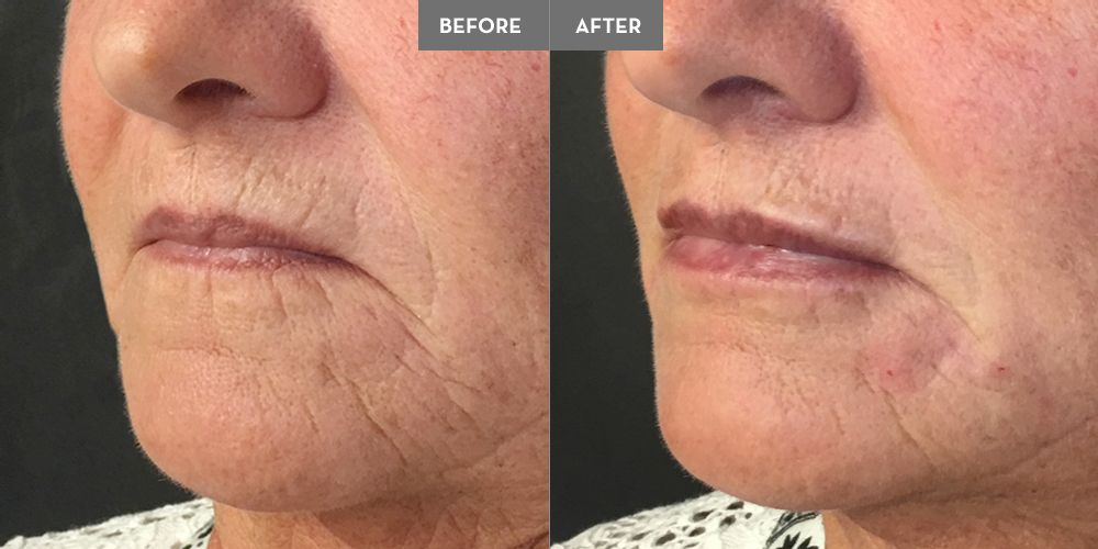 1 Juvederm Ultra Plus for lip definition and filling the perioral lines around the mouth, chin, pre-jowl sulcus to turn the corners of the lips back up