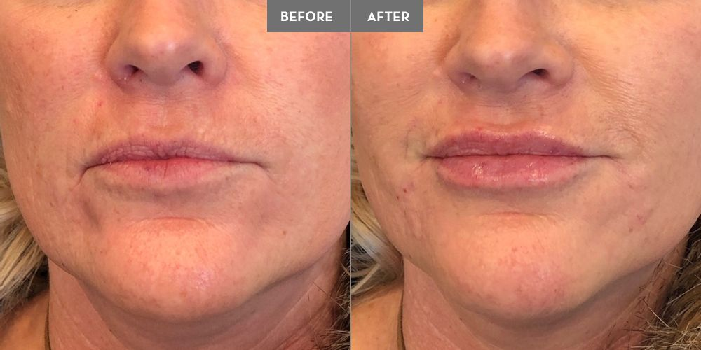 1 Juvederm Ultra for lip enhancement and volume, 1 Vollure for the pre-jowl sulcus/chin volume loss and
