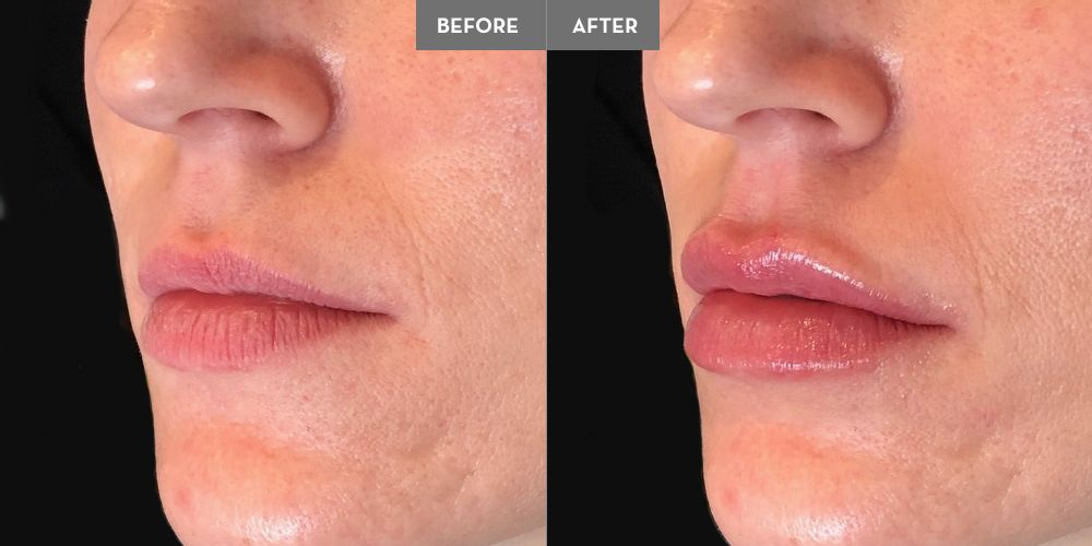 1 Vollure to enhance lip volume without much definition for a softer, plumper lip